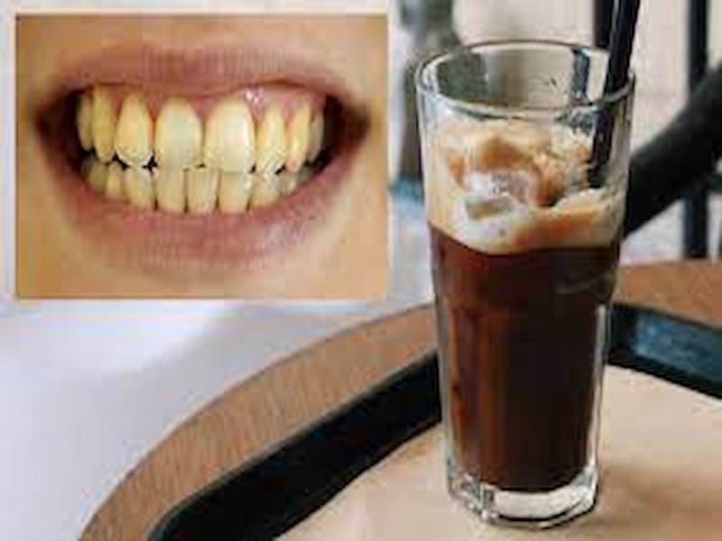 Cà phê gây ố vàng răng